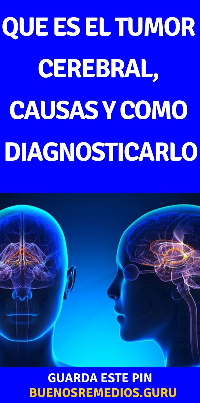 cancer cerebral que es intraductal papillomas removal