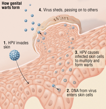 can hpv cause liver cancer