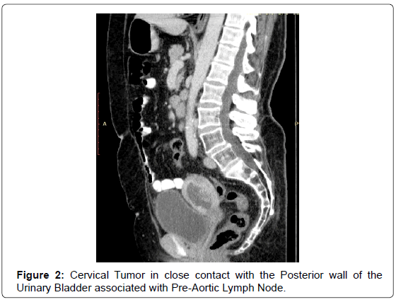 Case reports – common and external carotid artery resection in head and neck cancer patients