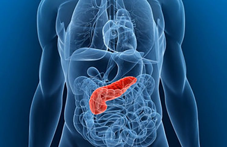 cancer de pancreas y diabetes