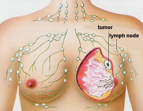 virus papiloma humano peru endometrial cancer risk factors