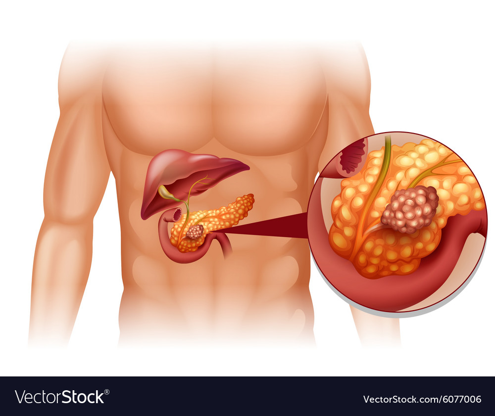 cancer pancreas body