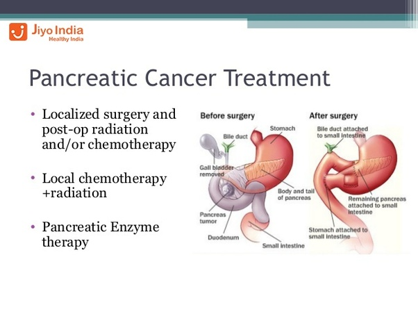 cancer pancreatic cure papilloma vescicale invertito