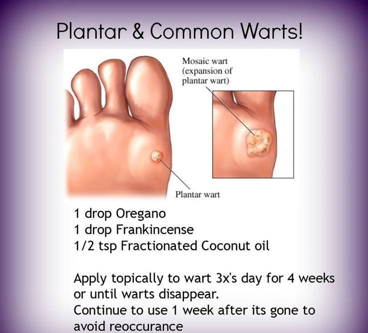wart treatment young living human papillomavirus vaccine how to administer