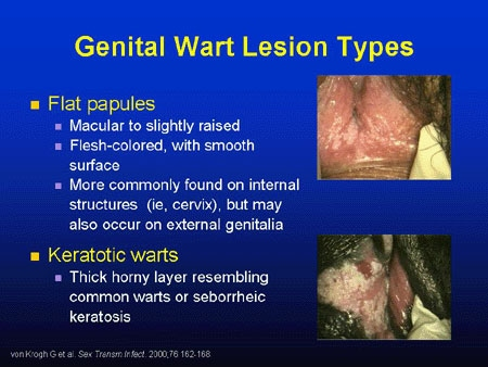 hpv warts vs cancer