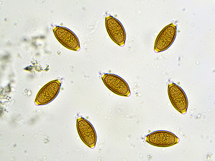 can enterobius vermicularis be found in urine