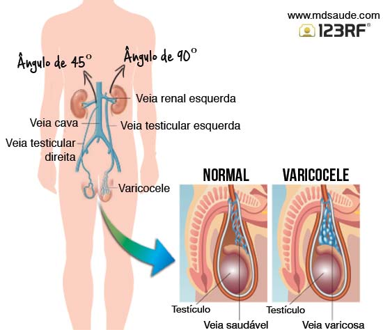 renal cancer and varicocele