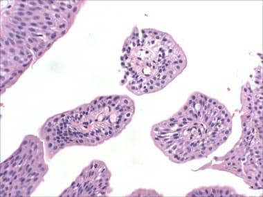 cancer rectal tnm hpv virus test results