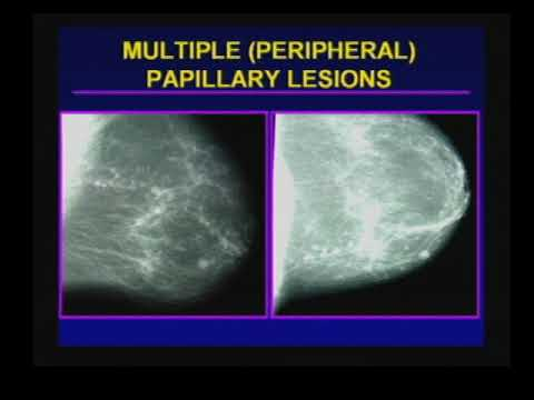 papillary lesion in breast hpv cancer mouth