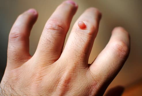 do warts on hands hurt