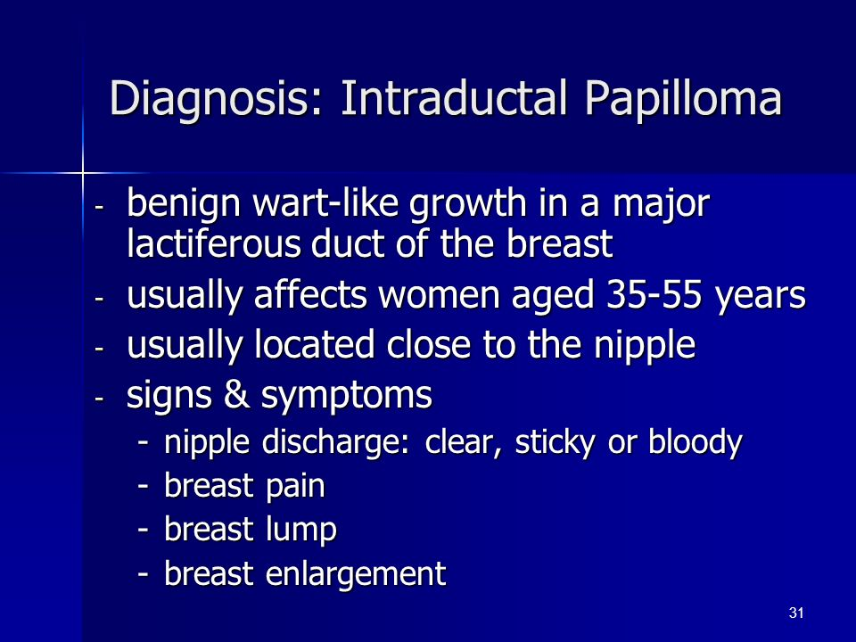 duct papilloma diagnosis