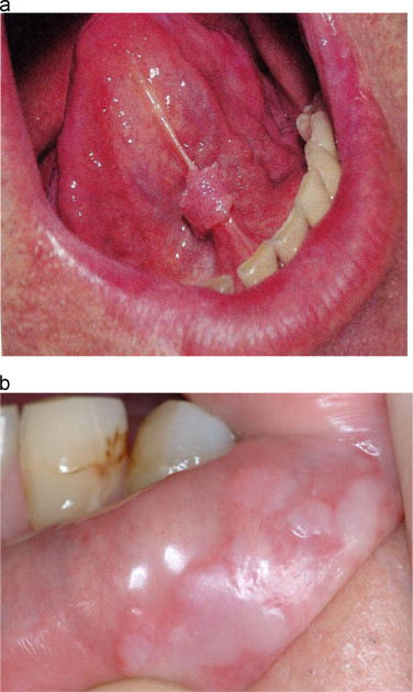 hpv tongue removal