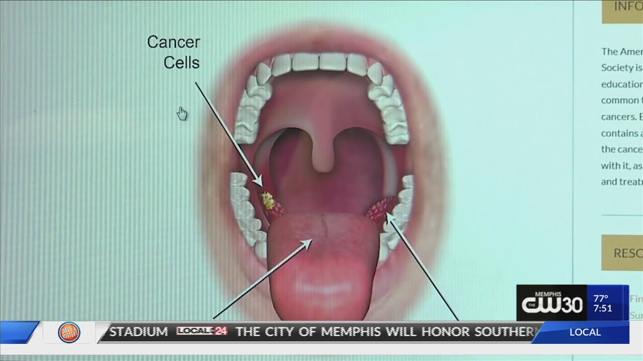 cancer of the throat from hpv