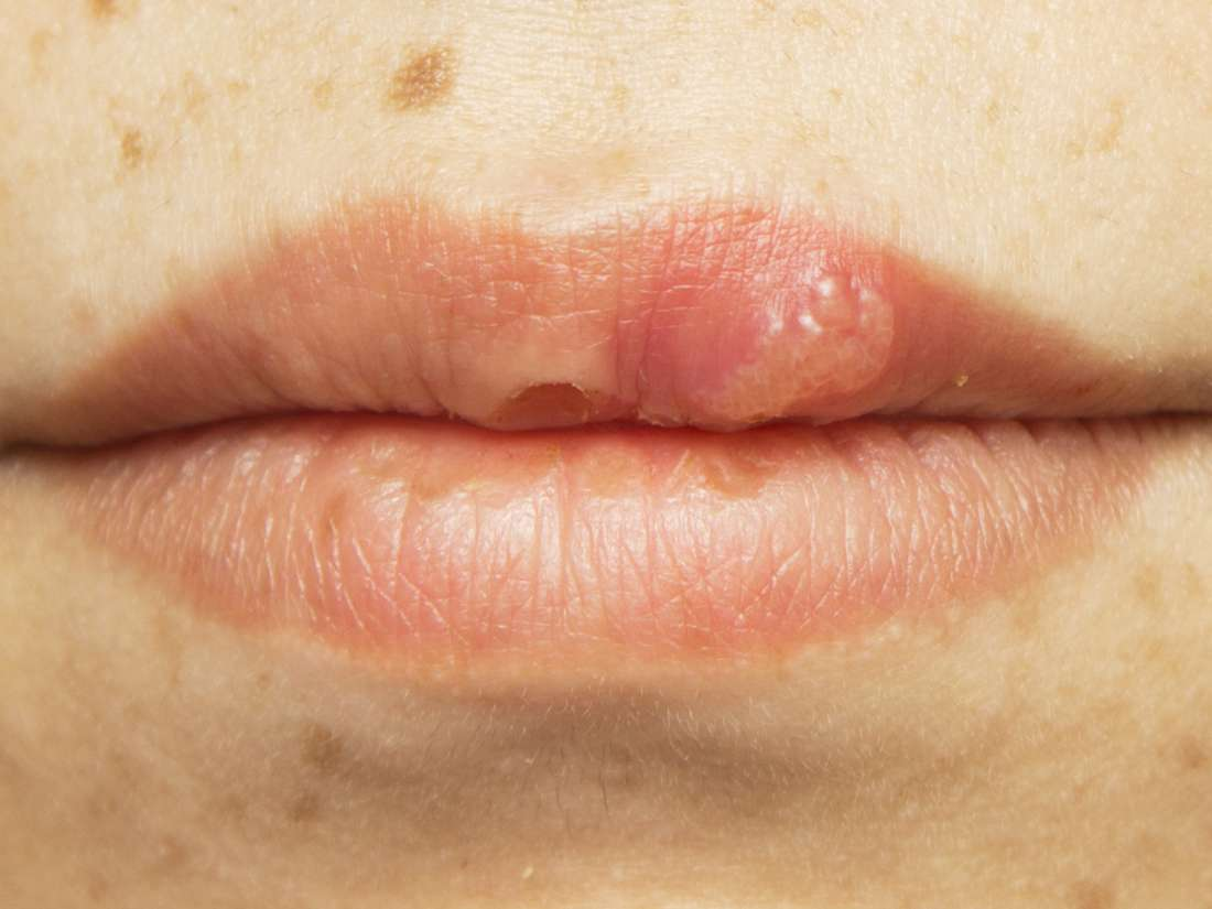 hpv warts on lips pictures diarree e