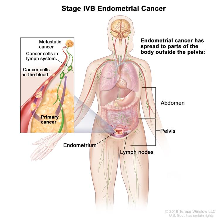 endometrial cancer lower back pain simptome paraziti intestinali la adulti