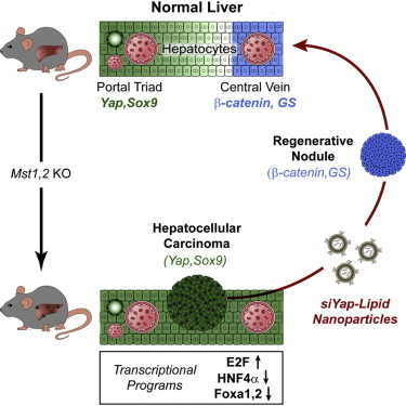 hepatic cancer differentiation neuroendocrine cancer growth