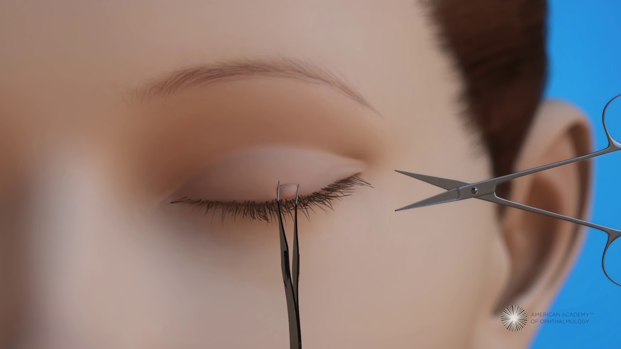 how to remove a papilloma on the eyelid
