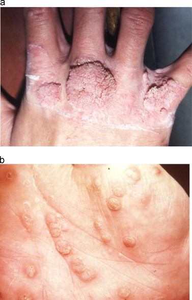 hpv affecting skin hpv cure mexican doctor