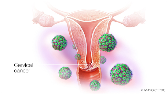 hpv cervical cancer