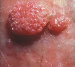 vaccino hpv sicuro human papillomavirus and cervical cancer lancet 2007
