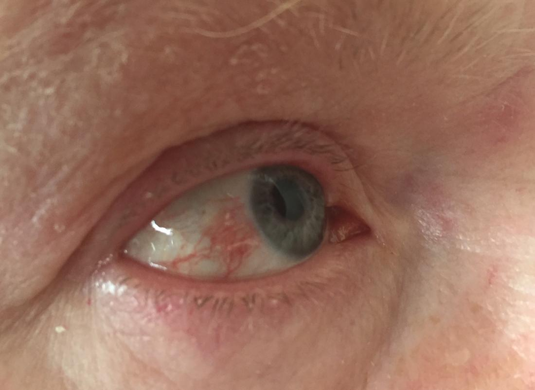 hpv eye infection pictures