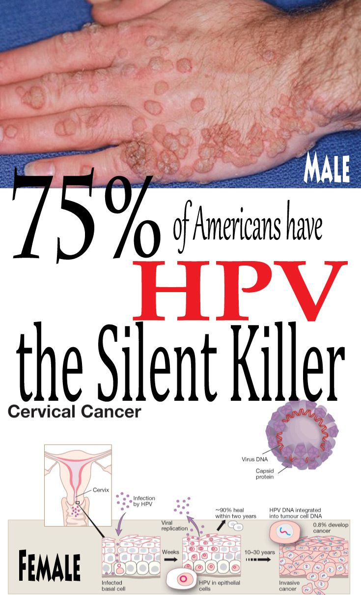 hpv herpes test