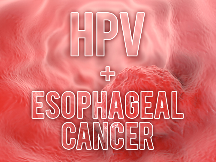 hpv in esophageal cancer
