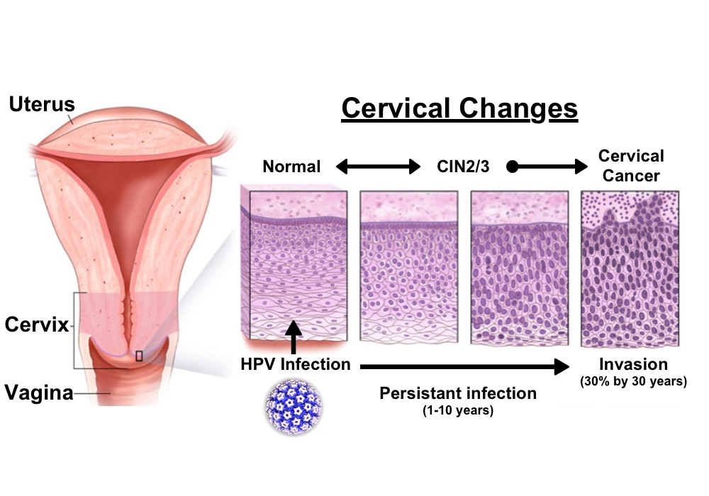 hpv infection cervical cancer cancerul de pancreas