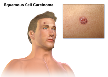 hpv mediated squamous cell carcinoma icd 10