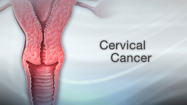 hpv warts cause cervical cancer