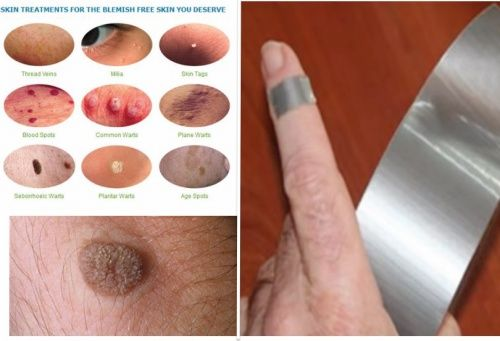 testicular cancer keyhole surgery hpv vaccine history
