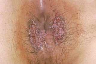 hpv warts not going away cancerul pielii