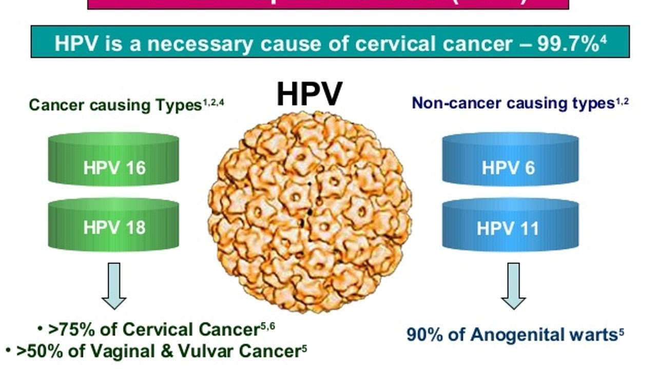 human papillomavirus in cervical cancer in peritoneal fluid