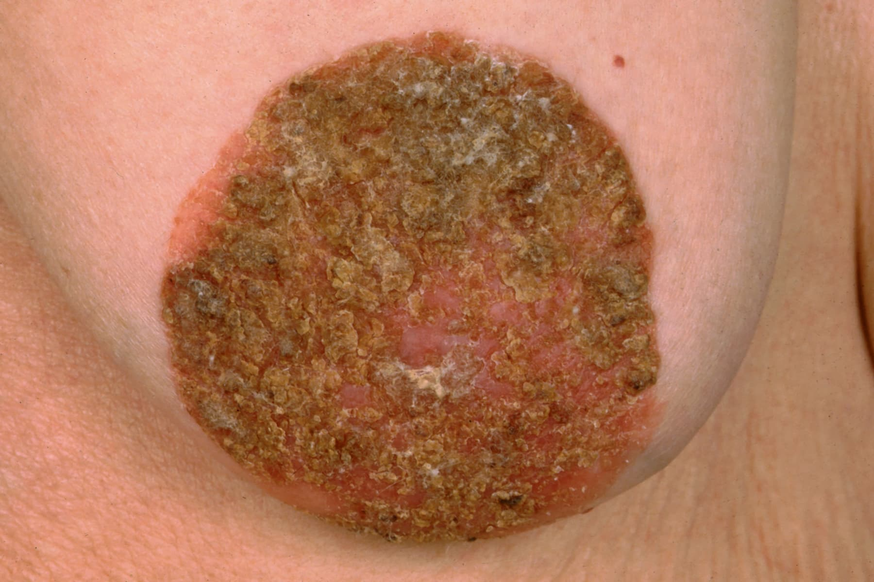 intraductal papilloma itching