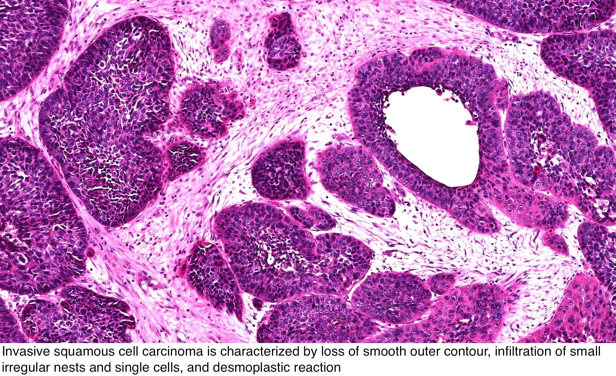 inverted papilloma nasal cavity histology