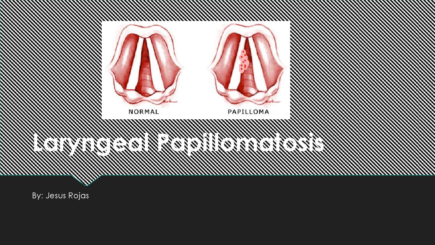 intraductal papilloma of breast symptoms ductal papilloma tumor