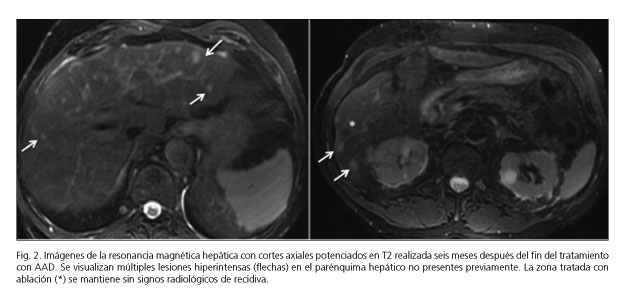 neuroendocrine cancer recurrence