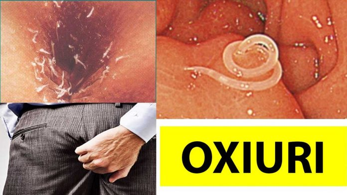 oxiuri tratament rapid