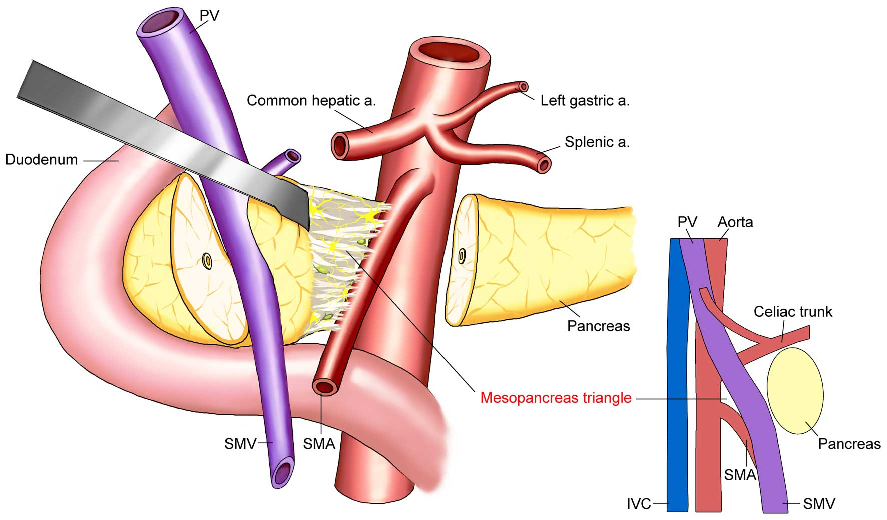 pancreatic cancer hepatic vein cancerul de colon stadiul 4