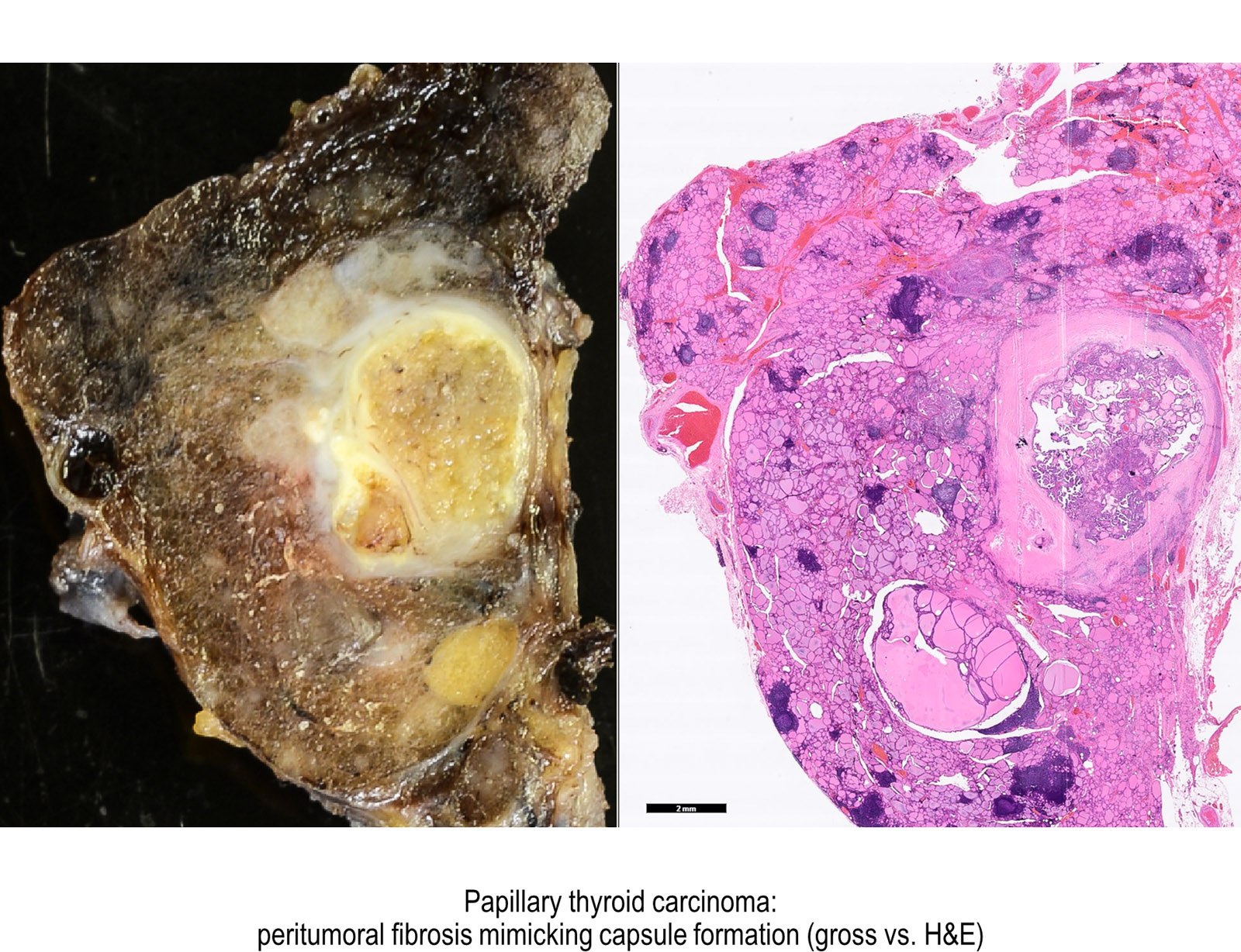 papillary thyroid cancer features antihelmintic alaptare