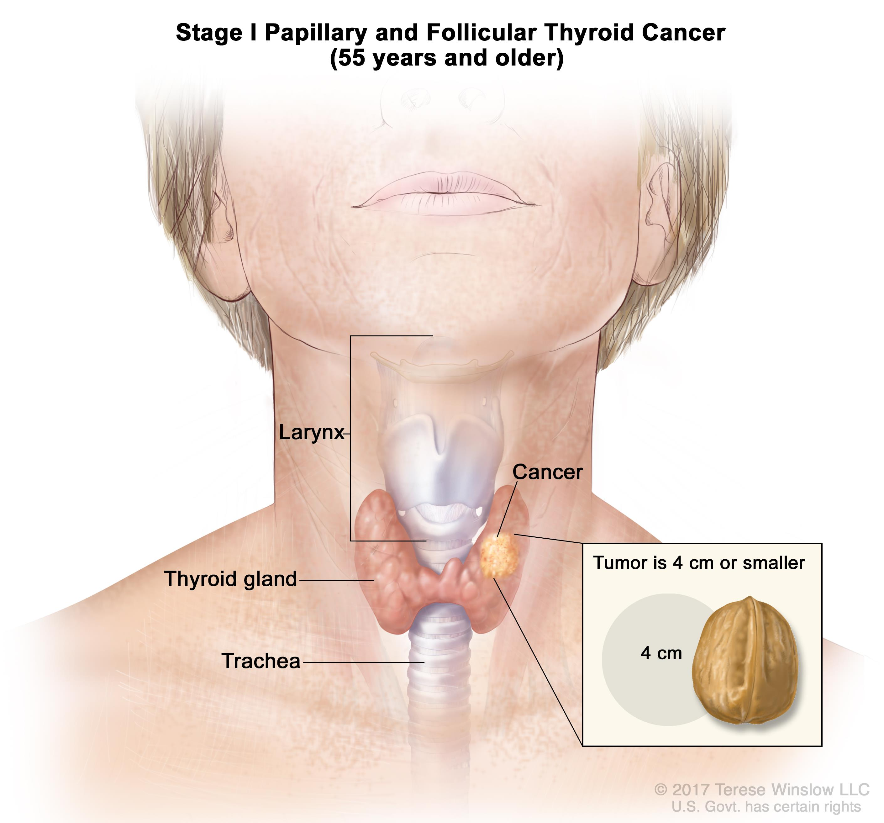 papillary thyroid cancer what were your symptoms