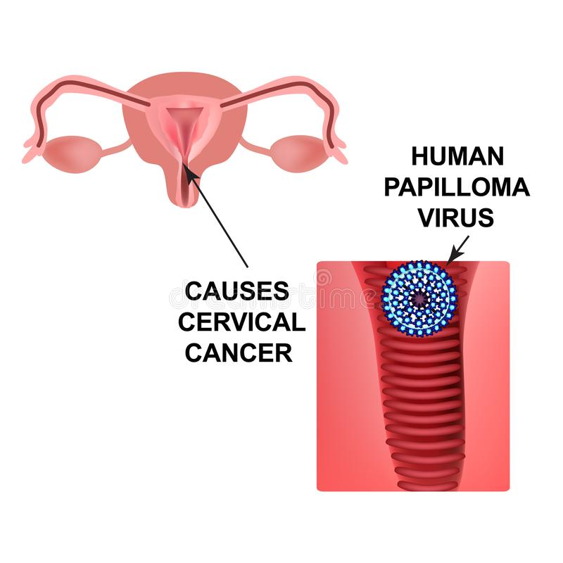 related to infection with human papillomavirus (hpv)