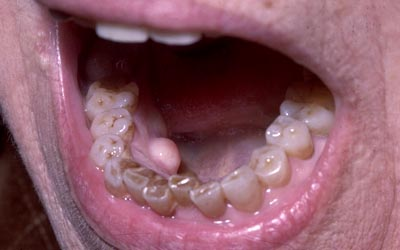 papillary lesion tongue
