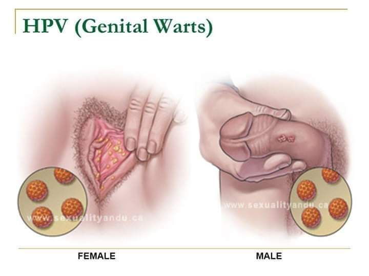 papillomavirus genital symptomes papillomas occur mainly in which group