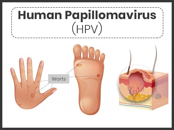 papillomavirus (hpv) infection