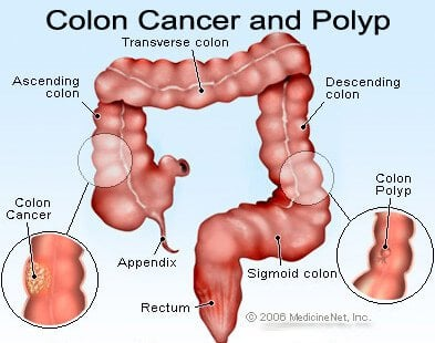 rectal cancer in colon