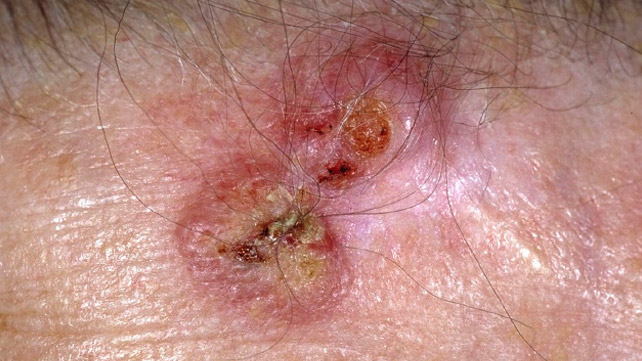 sarcoma cancer of the skin