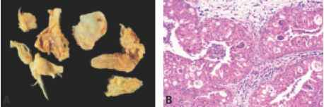 schneiderian papilloma oncocytic type
