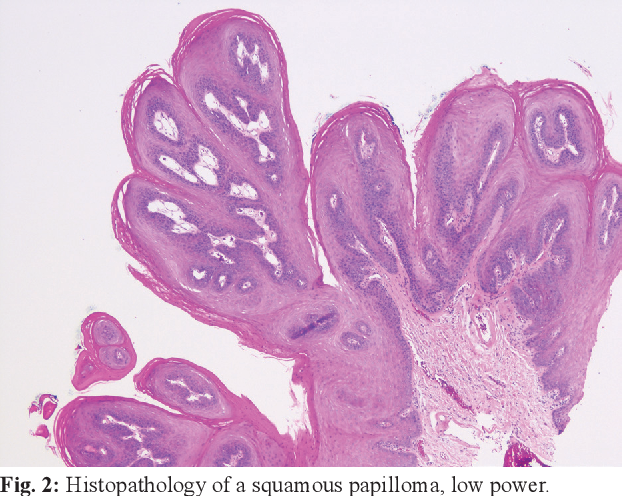 squamous papilloma tongue pathology