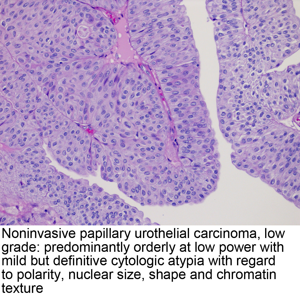 urothelial inverted papilloma pathology outlines